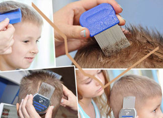 Best Lice Combs for Lice Removal